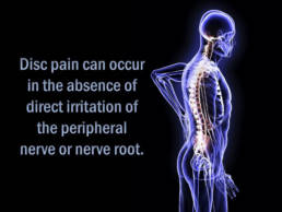 2 - Disc Herniation Treatment - Revolution Chiropractic - Miami Queensland