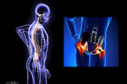 Revolution Chiropractic - Dr Mark Illguth - Lower Back Pain - 2 (1)