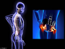Revolution Chiropractic - Dr Mark Illguth - Lower Back Pain - 2 (1)