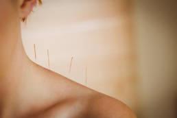 Revolution Chiropractic - Dr Mark Illguth - Massage Services - Dry Needling
