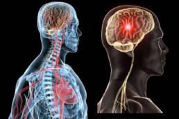 Revolution Chiropractic - Dr Mark Illguth - Services General (1)