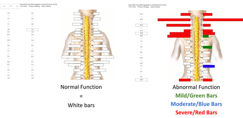 What Do I Need To Know Before My NeuroStructural Examination - 2